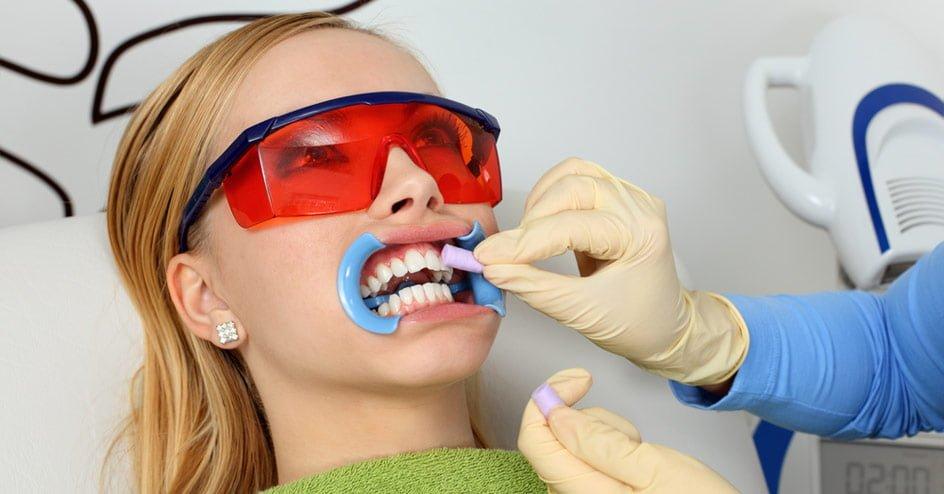 Tannbleking hos tannlege